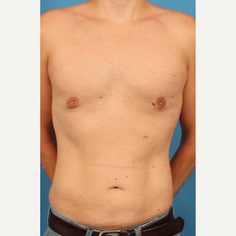 35 year old man treated with Male Breast Reduction + Liposuction to flanks, abdomen and upper back after 3298153