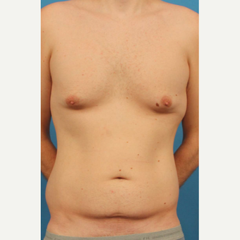 35 year old man treated with Male Breast Reduction + Liposuction to flanks, abdomen and upper back before 3298153