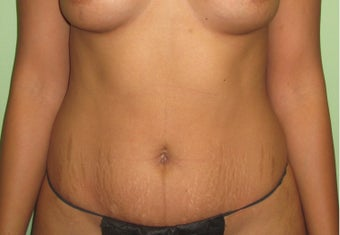 35-44 year old woman treated with Liposuction before 3241970