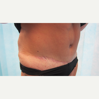 55-64 year old woman treated with Tummy Tuck after 3265973