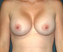 Breast Implants after 3545120