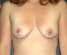 Breast Implants before 3545120