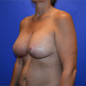 45-54 year old woman treated with Breast Lift with Implants after 3487636