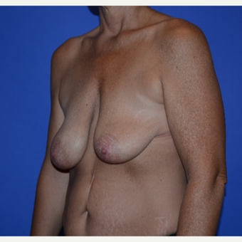 45-54 year old woman treated with Breast Lift with Implants before 3487636