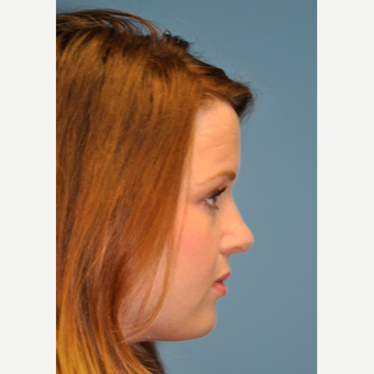 18-24 year old woman treated with Rhinoplasty after 3332403