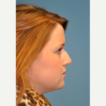 18-24 year old woman treated with Rhinoplasty before 3332403