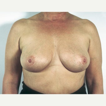 45-54 year old woman treated with Breast Implant Removal and Mastopexy after 1817208
