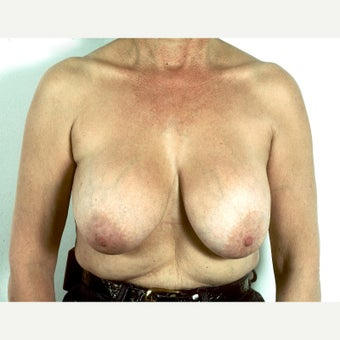 45-54 year old woman treated with Breast Implant Removal and Mastopexy before 1817208