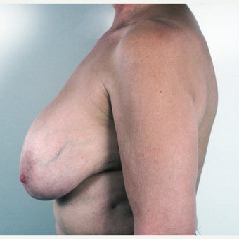 45-54 year old woman treated with Breast Implant Removal and Mastopexy 1817208
