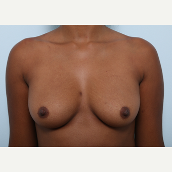 Breast Augmentation before 3425500