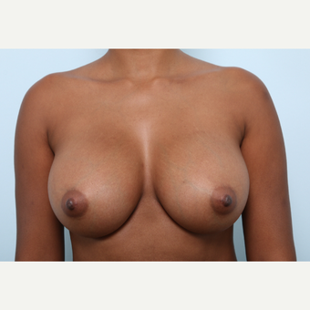 Breast Augmentation after 3425500