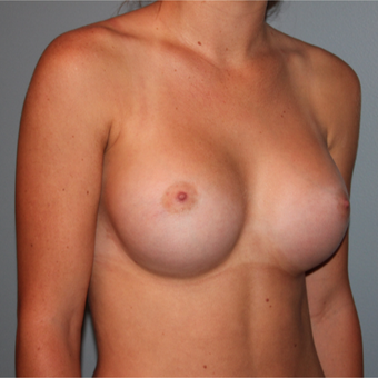 21 year old has breast implants to improve overall fullness after 3465159