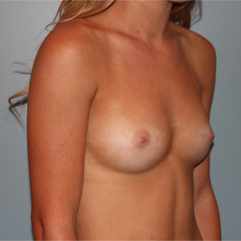21 year old has breast implants to improve overall fullness before 3465159