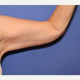 54 year old woman with an Arm Lift after 3522423