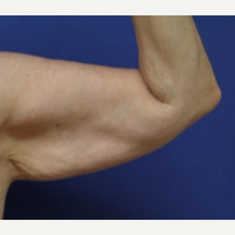 54 year old woman with an Arm Lift before 3522423