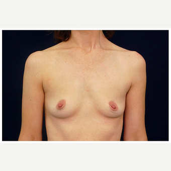 35-44 year old woman treated with Breast Implants before 3103336