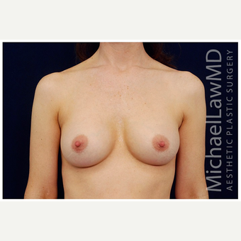 35-44 year old woman treated with Breast Implants after 3103336