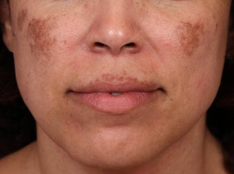 Cosmelan and Laser for Melasma before 1355789