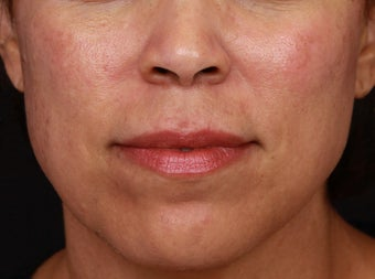 Cosmelan and Laser for Melasma after 1355789