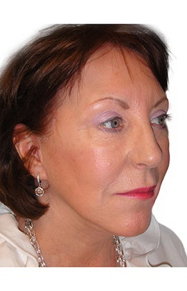 Facelift, necklift, upper & lower blepharoplasty 526457