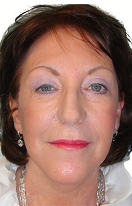 Facelift, necklift, upper & lower blepharoplasty after 526457