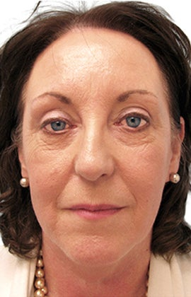 Facelift, necklift, upper & lower blepharoplasty before 526457
