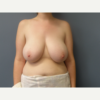 18-24 year old woman treated with Breast Reduction before 3034111