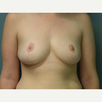 18-24 year old woman treated with Breast Reduction after 3034111