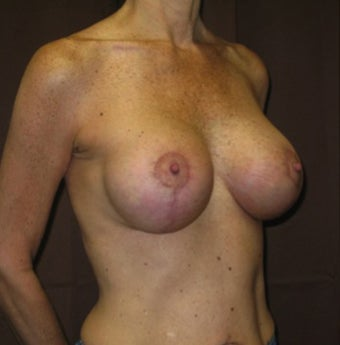 46 year old female who underwent a breast lift with implants after 1494963