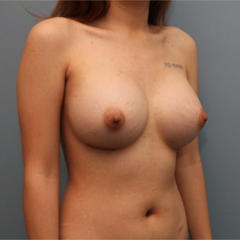 21 year old woman treated with Breast Augmentation after 3544236