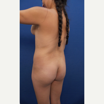 25-34 year old woman treated with Brazilian Butt Lift before 3604052