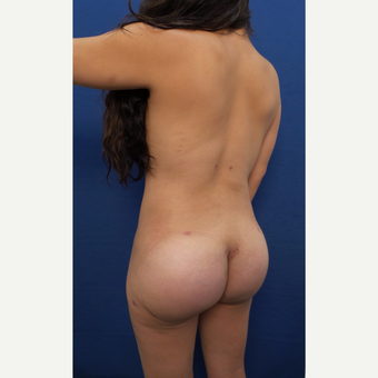 25-34 year old woman treated with Brazilian Butt Lift after 3604052