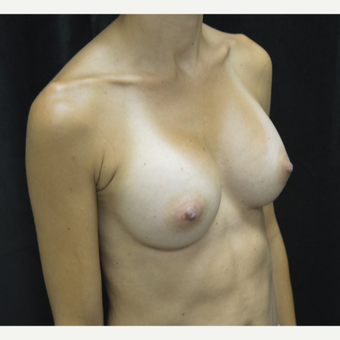 35-44 year old woman treated with Breast Augmentation after 3423890