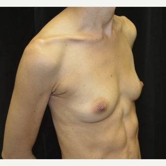 35-44 year old woman treated with Breast Augmentation before 3423890