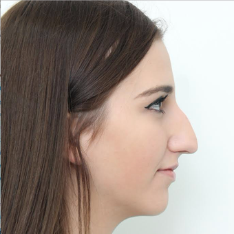 18-24 year old woman treated with Rhinoplasty before 3366736