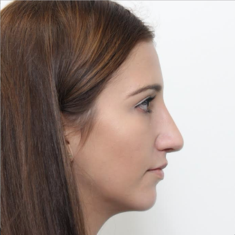 18-24 year old woman treated with Rhinoplasty after 3366736