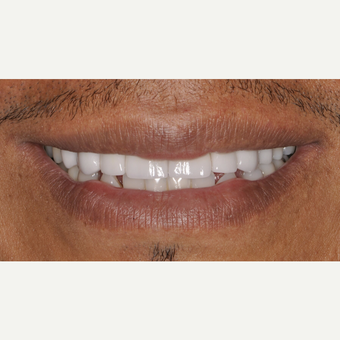 35-44 year old man treated with Porcelain Veneers after 3537395