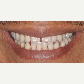 35-44 year old man treated with Porcelain Veneers before 3537395