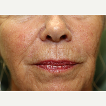 65-74 year old woman treated with Chemical Peel before 3837240