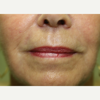65-74 year old woman treated with Chemical Peel after 3837240
