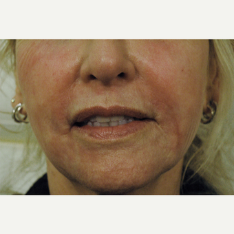 Remove Smoker's Lines, Fractional Laser Resurfacing Los Angeles after 2746271