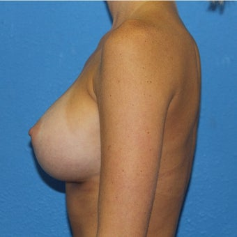 25-34 year old woman treated with Sientra Breast Implants after 2302895