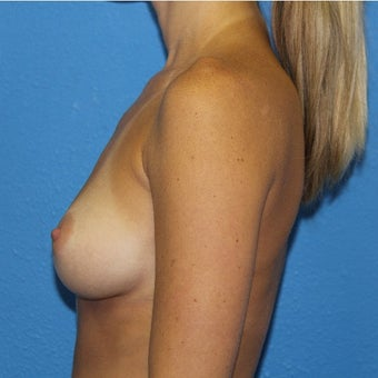 25-34 year old woman treated with Sientra Breast Implants before 2302895