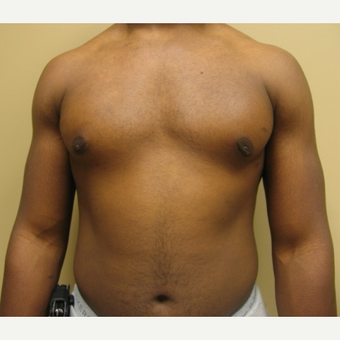 35-44 year old man treated with Liposuction after 3809660