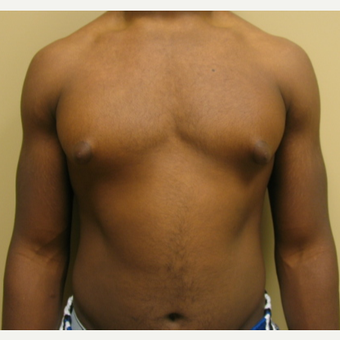 35-44 year old man treated with Liposuction before 3809660