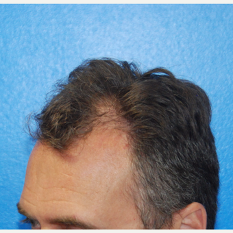 45-54 year old man treated with FUE Hair Transplant before 3604020