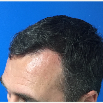 45-54 year old man treated with FUE Hair Transplant after 3604020