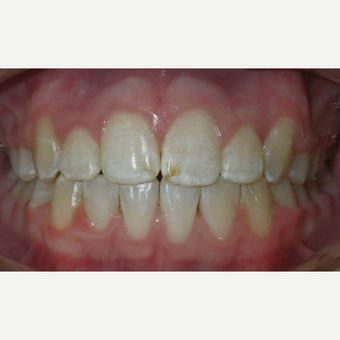 17 or under year old man treated with Braces after 3657337