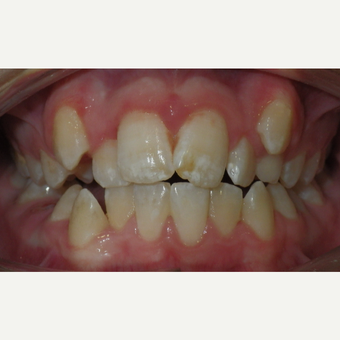 17 or under year old man treated with Braces before 3657337
