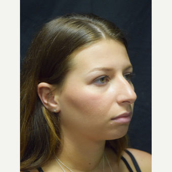 18-24 year old woman treated with Rhinoplasty before 3179659